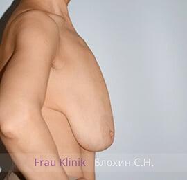 Уменьшение груди 21