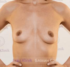 Увеличение груди 22