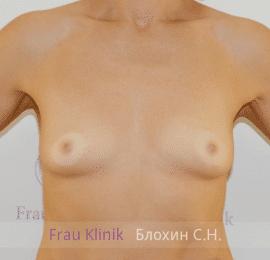 Увеличение груди 148