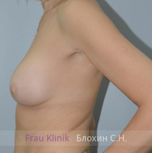 Увеличение груди 145