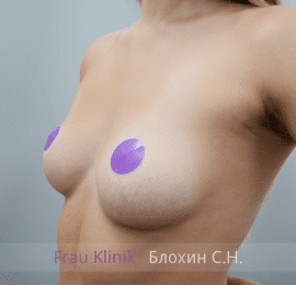 Увеличение груди 138
