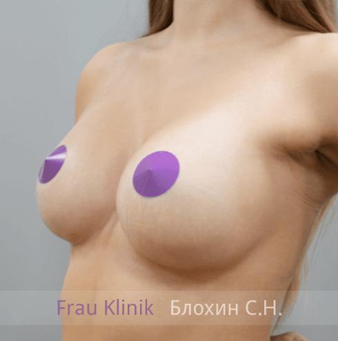 Увеличение груди 139