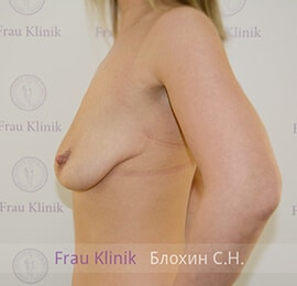 Подтяжка груди 14