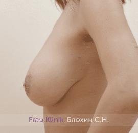 Уменьшение груди 41