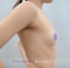 Увеличение груди 154