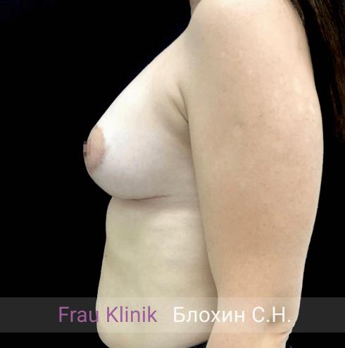 Подтяжка груди с увеличением 8