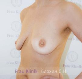 Подтяжка груди с увеличением 17