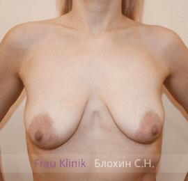 Подтяжка груди с увеличением 37