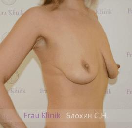 Подтяжка груди с увеличением 29