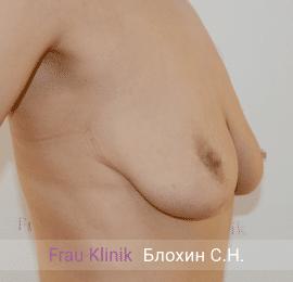 Подтяжка груди с увеличением 13