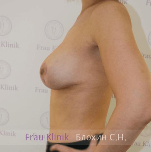Подтяжка груди с увеличением 26