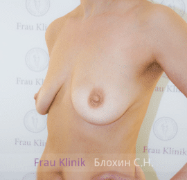 Коррекция асимметрии груди 27