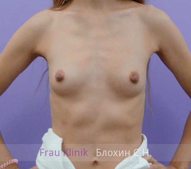 Эндоскопическое увеличение груди 6