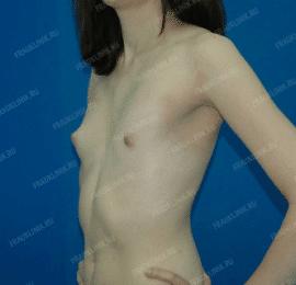 Коррекция ассиметрии груди 15