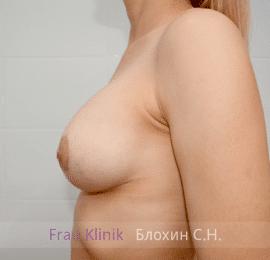 Коррекция асимметрии груди 36