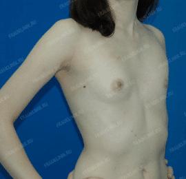 Коррекция ассиметрии груди 17