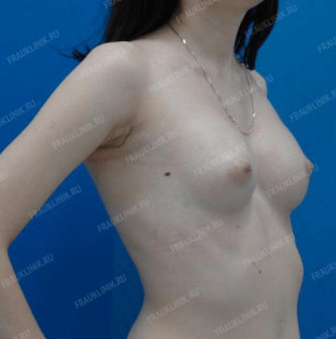 Коррекция асимметрии груди 18