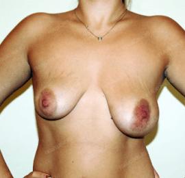 Коррекция асимметрии груди 19