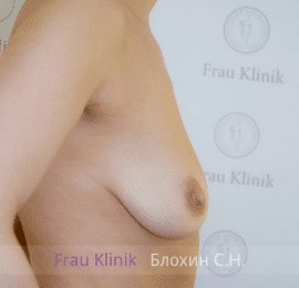 Коррекция асимметрии груди 33