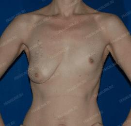 Коррекция асимметрии груди 21