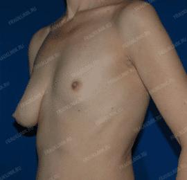 Коррекция асимметрии груди 25