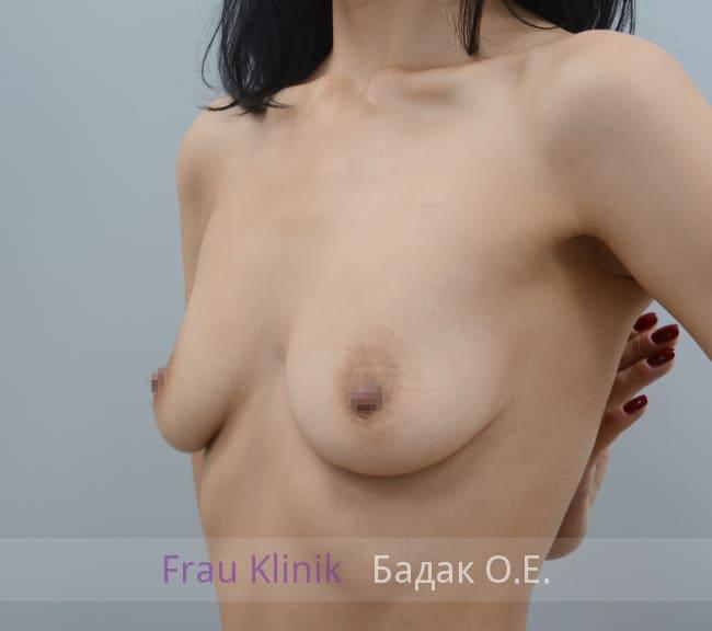 Двухплоскостное эндоскопическое увеличение груди 5