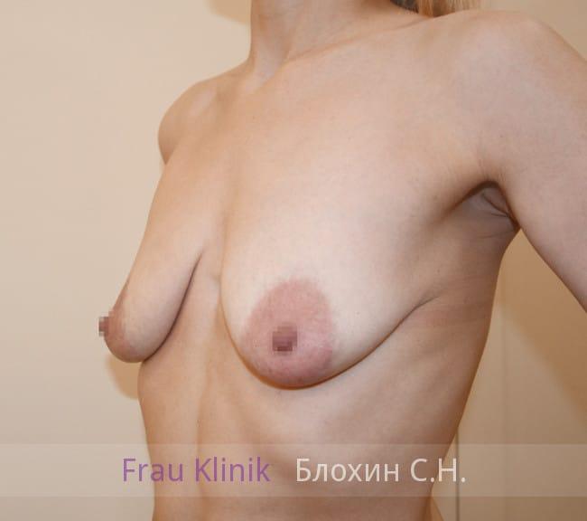 Пластика груди после родов 4