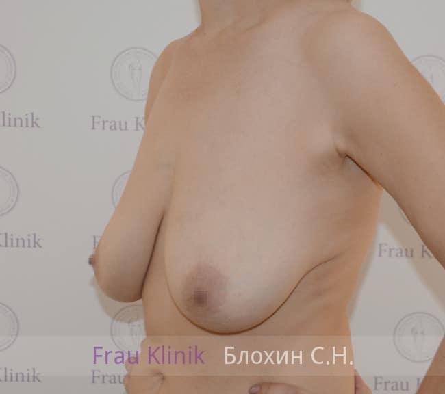 Пластика груди после родов 12