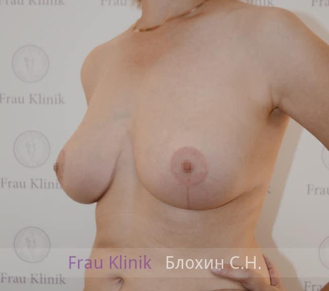 Пластика груди после родов 13