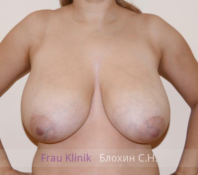 Пластика груди после родов 6