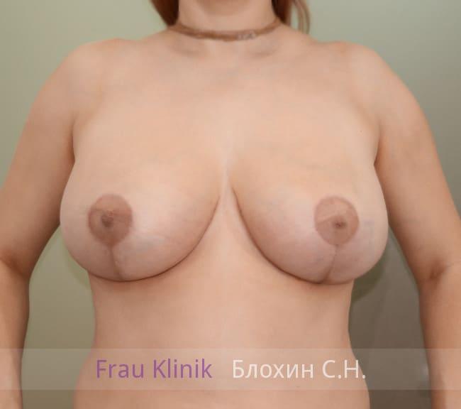 Пластика груди после родов 7