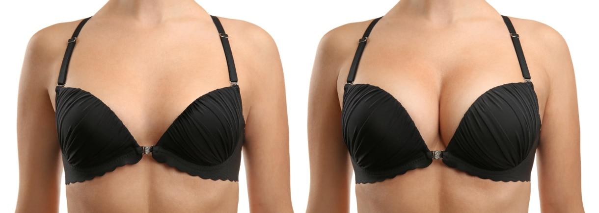Эндоскопическое увеличение груди 1