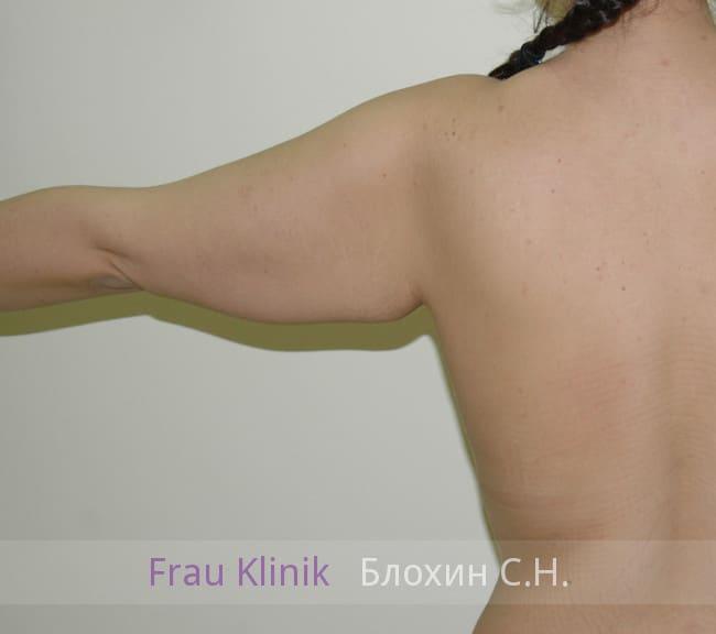 Брахиопластика 4