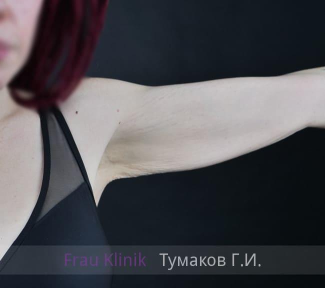 Брахиопластика 8