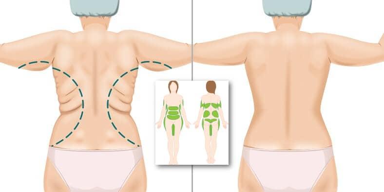 Липосакция спины 2