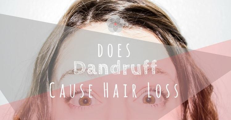 Does Dandruff Cause Hair Loss-min