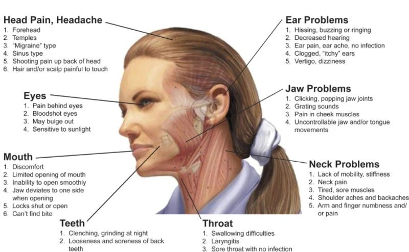 5 Signs Your Headache May Be Caused By TMJ | News | emporiagazette
