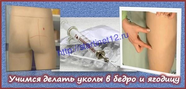 Как правильно сделать самому себе внутримышечную инъекцию в бедро? Как поставить укол в бедро самому себе.