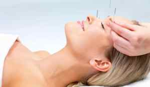 acupuncture for acne