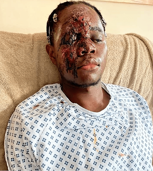 https://bluebloodz.com/index.php/2020/07/29/young-nhs-worker-badly-injured-after-racially-aggravated-hit-run-attack-graphic-photos/‎(opens in a new tab)