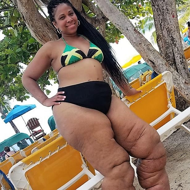 Lymphedema : Monique Samuels Finally Embraces BODY POSITIVITY. see photos