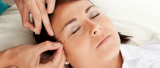 Cosmetic Acupuncture1
