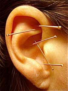 battlefield acupuncture James Whittle