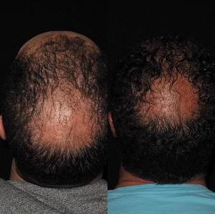 receding hair scalp