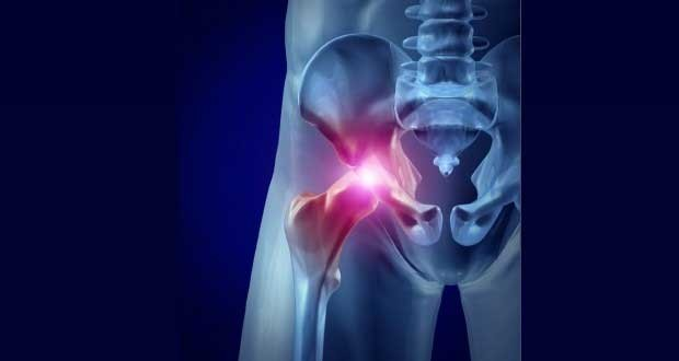 Image result for Hip Flexor Pain