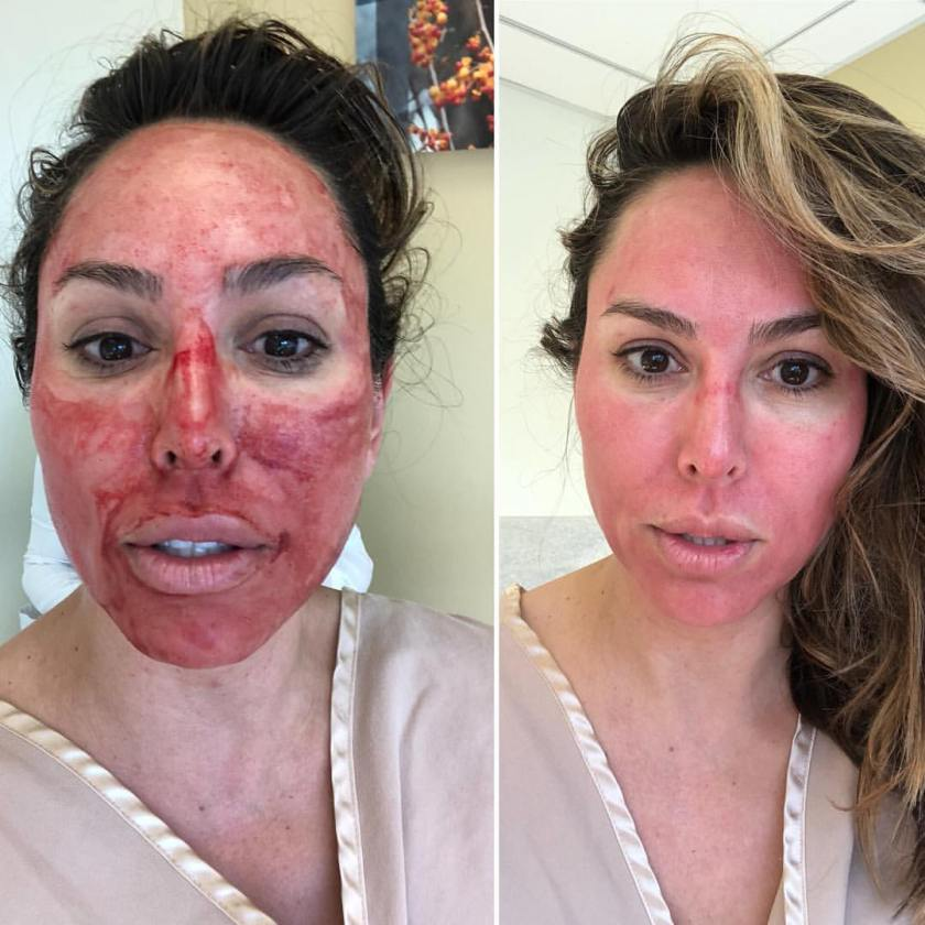 Kelly Dodd-vampire-facial-micro-needling