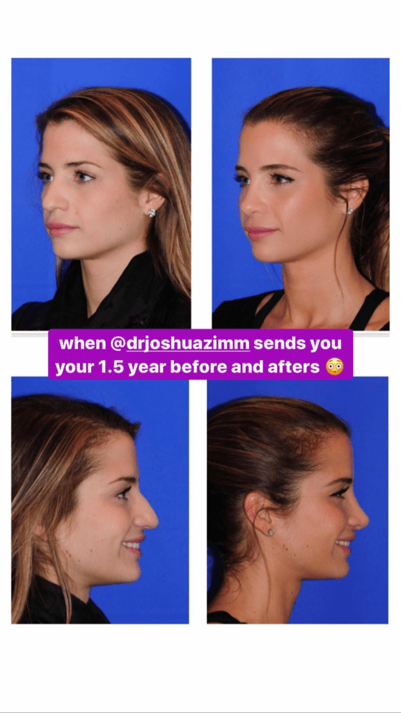 Naomie Olindo's nose job before and 1.5 years after surgery