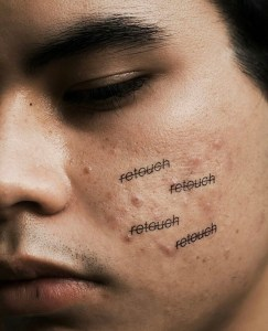 "Close up of man with acne with black, strike-though, type ""retouch, retouch, retouch, retouch."""