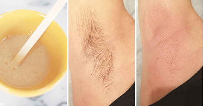 Best way to get rid of underarm hair at home