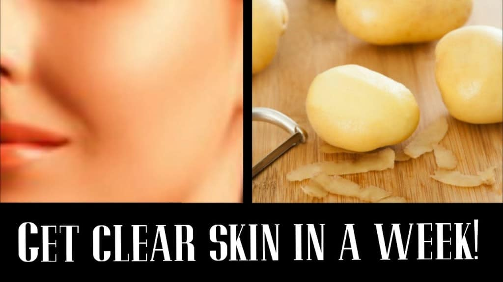 10 Ways To Use Potatoes For Your Skin And Health 6